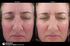 Theres a new product on the market - Jan Marini Rosalieve.  formulated to calm the skin and reduce the appearance of facial flushing. Check out our Versus chart to see a first hand review of the product.