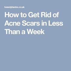 How to Get Rid of Acne Scars in Less Than a Week#naturalskincare #skincareproducts #Australianskincare #AqiskinCare #australianmade