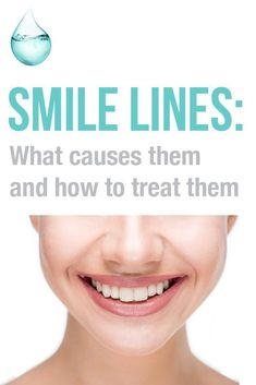 SMILE LINES: What causes them and how to treat them. Did you know these easy at-home remedies for wrinkled skin ? Skin Care – Wrinkle prevention and treatment #skincareforwrinkleshomeremedies