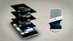 """This portable ultrasound will beam images straight to your phone -  Have you ever looked at your phone and thought """"this device is a pretty phenomenal illustration of man's mastery over nature… but I really wish I could use it to see inside the uteri of pregnant women""""? Then good news, as a new medical gadget from Clarius could solve this most u... http://www.technologynews.tvseriesfullepisodes.com/this-portable-ultrasound-will-beam-images-straight-to-your-p"""