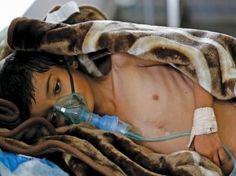 #موسوعة_اليمن_الإخبارية l الأمم المتحدة : اليمن قد يشهد مجاعة في 2017