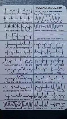 EKG Heart Rhythms Cheat Sheet The ultimate guide to EKG (ECG) interpretation for nurses. Most Nurses Have to Interpret EKG Rhythms Every Day. Our FREE Cheat Sheet Will Make Recognizing the Difference Second Nature. Nclex, Nursing Articles, Nursing Tips, Nursing Cheat Sheet, Nursing Programs, Rn Programs, Certificate Programs, Nursing School Notes, Nursing Schools