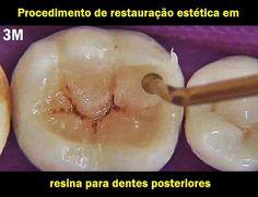 Procedimento de restauração estética em resina para dentes posteriores - 3M   Odonto-TV
