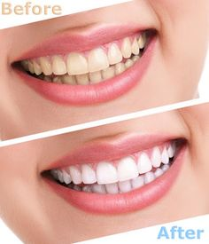 Brightening your smile is as easy as 1-2-3 when you schedule an appointment with…