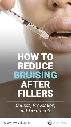 Bruising is very common after filler treatments. Some studies state that it occu… Bruising is very common after filler treatments. Some studies state that it occurs in roughly of patients while others have concluded that figure to be… Continue Reading → Face Fillers, Botox Fillers, Dermal Fillers, Fillers For Lips, Cosmetic Fillers, Juviderm Lips, Botox Lips, Botox Injection Sites, Botox Injections