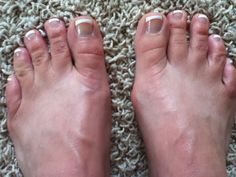 Big Toe, Emotional Healing, Determination, Pedicure, No Response, Handle, Strong, Yoga, Shape