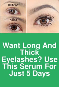 Want Long and thick eyelashes? Use this Serum for just 5 days This eyelashes ser. - Care - Skin care , beauty ideas and skin care tips Aloe Vera Skin Care, Exfoliating Body Scrub, Eyelash Growth Serum, Thicker Eyelashes, How To Apply Lipstick, Natural Beauty Tips, Natural Lashes, Eye Makeup Tips, Skin Care Tips