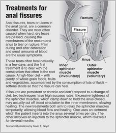 Information graphic about Anal fissures treatments, and links to information about acupressure for pain in the down there area.