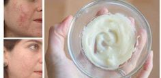 Check Out Her Natural Acne Remedy And Get Rid Of Your Skin Problems TODAY!