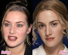 Celebs Before and After nose plastic surgery - 36 Pics | Curious, Funny Photos / Pictures