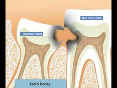 Wisdom tooth pain, instead of blessing us with some wisdom, it often brings a massive toothache along with it. It can cause severe discomfort.
