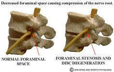 Lumbar Neural Foraminal Stenosis What is spinal stenosis?