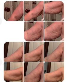 The Body Shop, Our Body, Beth Potter, I Am Amazing, Best Oils, Before And After Pictures, Skincare, Arms, Lost