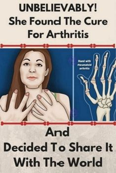 Unbelievably! She Found The Cure For Arthtitis And Decidet To Share It With The World #Unbelievably!SheFoundTheCureForArthtitisAndDecidetToShareItWithTheWorld