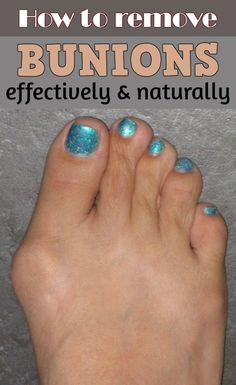 Learn how to remove bunions effectively and naturally.