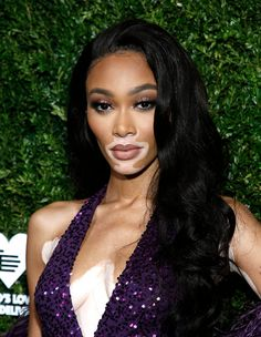 Winnie Harlow Smoky Eyes - Winnie Harlow accentuated her eyes with smoky makeup. Black Celebrities, Celebs, Beauty Crush, Winnie Harlow, Show Beauty, Black Actresses, Fc B, Dope Hairstyles, Colorful Eye Makeup