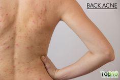 back acne symptoms