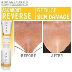 Reverse Regimen is a simple, full-face solution that tackles the damage brought on by years of sun exposure. It is designed to exfoliate dulling dead cells, visibly improve skin tone, brighten the overall complexion, and defend against further UV damage. I personally use this product and my freckles and brown spots have faded tremendously giving me more confidence in my appearance. visit my web site  - janele@myrandf.com, www.janele.myrandf.biz