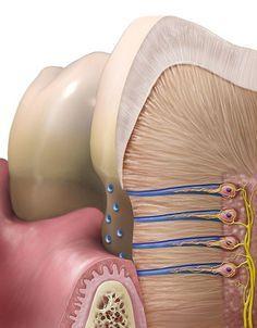 Eroziuni dentare. Acestea pot fi de origine carioasă sau necarioasă: parafuncţii sau obiceiuri vicioase care du la pierderi de smalţ sau chiar dentină. Dental Surgery, Dental Implants, Dental Assistant, Dental Hygienist, Dental Images, Teeth Whitening That Works, Dental Anatomy, Dental Art, Dental Crowns