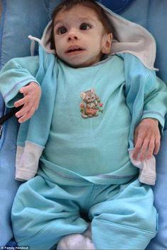 ▫️ شاهد معجزة هذا الطفل المعاق بعد عامين مع سيدة أميركية ▫️ #أطفال ▫️ #الأيتام ▫️ #الإعاقة ▫️ #المعاقين ▫️ #الولايات_المتحدة ▫️ #بلغاريا ▫️…