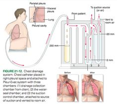 Chest tubes - there SHOULD be gentle bubbling in suction control chamber, and should NOT be bubbling in water-seal chamber (system leak). Nursing School Tips, Icu Nursing, Nursing Tips, Nursing Notes, Nursing Schools, Rn Nurse, Nurse Life, Nurse Humor, Nurse Stuff