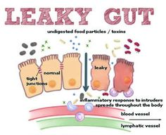 Leaky Gut Explained in An Easy Way (autoimmune, AIP, SIBO)