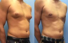 Gynecomastia surgery cost in Hyderabad, 09 Male breast surgery treatment Pay-in-monthly starting price cost and insurance and cashless treatment gynecomastia surgery Tricyclic Antidepressant, Male Chest, Plastic Surgery Procedures, Female Hormones, Thyroid Problems, Tummy Tucks, Hormone Imbalance, Liposuction