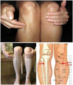 Zu San Li – A Point of a Hundred Diseases On Your Body: Here is Wh ...   Instiks