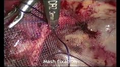 TEP Hernioplasty by Dr Vidur Jyoti