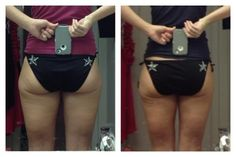 These results after just two Ultimate Body Applicator wraps. Getting ready for bathing suit season!