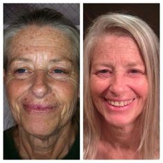 As we like to say, give us a year and we will give you ten back. Well, here are the results of using our world class products for a year. Think it works?! #livehappy #thanksnerium #Nerium #realresults #antiaging #facelift #success #itworks #whatareyouwaitingfor #nomorewrinkles