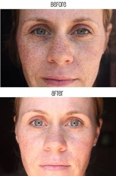 Rodan + Fields - awesome results after just 3 weeks!!!  www.jamiejohnson.myrandf.com