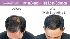 IF you want additional hair volume and or hair length while building the health of your hair and possible growing your hair at the same time additional information can be obtained by emailing info@InvisaBlend.com or calling the InvisaBlend Hair Studio at 800-992-9976. #invisablend #hairstranding #beforeafterhair #newhair #hairwig #beautifulhair #wigs #hairextensions #hairsalon #addinghair #hairhealthbeauty