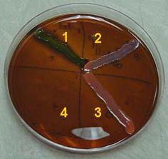 Escherichia Coli On Eosin Methylene Blue Emb Agar Greenish