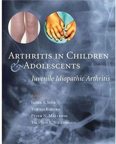 Arthritis in Children and Adolescents PDF - http://am-medicine.com/2016/02/arthritis-children-adolescents-pdf.html