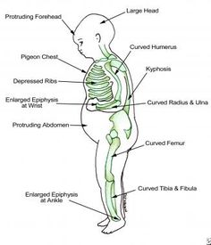 Findings in patients with rickets.