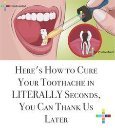 These quick and natural toothache remedies will help you send that tooth pain packing! Cure Tooth Ache, Oils For Tooth Ache, Cloves For Tooth Ache, Teeth Health, Healthy Teeth, Dental Health, Dental Care, Oral Health, Essential Oils Tooth Ache