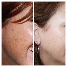 This is my before & afters using REVERSE with Rodan + Fields!  You too can get rid of all your sun damage