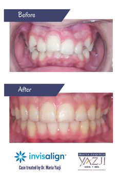 orthodontic correction of crowded teeth Orthodontic treatment — with braces, retainers or clear aligners — corrects conditions such as crowded or crooked teeth, overbite (when top teeth extend beyond bottom teeth), underbite (when bottom teeth are too far forward or upper teeth are too far back), incorrect jaw position and jaw-joint disorders.
