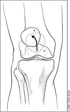 Knee Pain due to Pes Anserine Bursitis. Know it. Check if