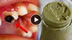 Il soigne les caries, les maladies des gencives et blanchit les dents naturellement … Ce Dentifrice naturel est MAGIQUE !