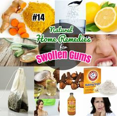 Remedies for Gingivitis Swollen Gums. Easy Natural Home remedies to treat sore gums at home.Home Remedies for Gingivitis Swollen Gums. Easy Natural Home remedies to treat sore gums at home. Sore Gums Remedy, Remedies For Tooth Ache, Natural Headache Remedies, Natural Home Remedies, Hair Remedies, Natural Healing, Holistic Remedies, Health Remedies, Swollen Gum
