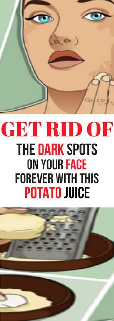 GET RID OF THE DARK SPOTS ON YOUR FACE FOREVER WITH THIS POTATO JUICE!