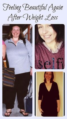 How To Feel Beautiful Again: Life After an Extreme Weight Loss.  Gastric Bypass Surgery.  Weight Loss Success Stories.