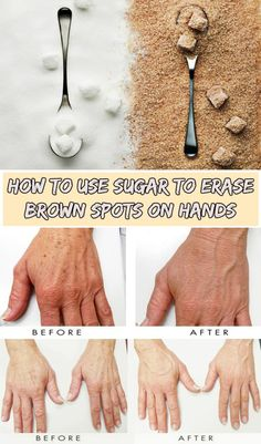 How to use sugar to erase brown spots on hands - WeLoveBeauty.org