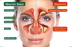 Having clogged sinuses isn't fun. You can't breath, you can't smell, your head hurts, and your voice sounds funny. Finding relief when you have clogged sinuses is usually like finding a million dollars on the ground — it's amazing! The causes for nasal congestion can range greatly, and you don't have to be sick to be […]
