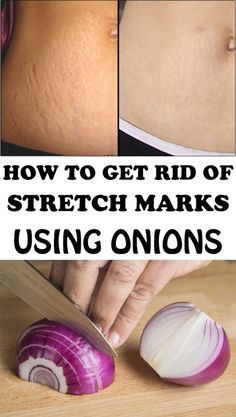 Meet Rodolpho Torres: Concealing Stretch Marks and Anti Eye Bags with Ink – My hair and beauty Foot Warts, Warts On Hands, Warts On Face, Get Rid Of Warts, Remove Warts, What Causes Warts, Types Of Warts, Stretch Mark Remedies, Stretch Mark Removal