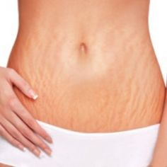To Fade Stretch Marks Stretch marks reducing cream: 100 fresh dandelion leaves, 1/2 liter of water, 1/2 glass aloe vera gel juice, 7 drops of rosehip oil, oatmeal (enough so that the mixture become...
