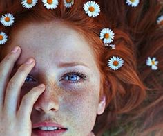 Learn To Love Your Freckles | via Tumblr