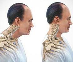 While there are many types of posture problems and disorders that affect men today, including those caused by medical conditions like Scoliosis, it's only. Bad Neck Posture, Posture Fix, Scoliosis Exercises, Posture Exercises, Tension Headache, Headache Relief, Lower Back Exercises, Thing 1, Yoga